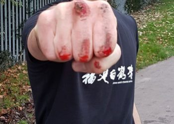 Joshua Villar, Instructor, Fujian White Crane Kung Fu & Tai Martial Arts, shows his bloodied fist to the camera after a knuckle walk